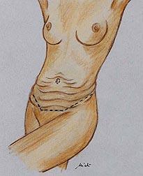 Pendulum abdomen - Abdominoplasty