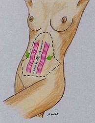 Abdominal wall modeling - Abdominoplasty