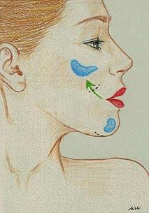 chin-cheekbone-2 - Surgery - Chin