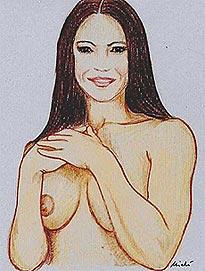 mastoplasty-reductive- Breastplasty